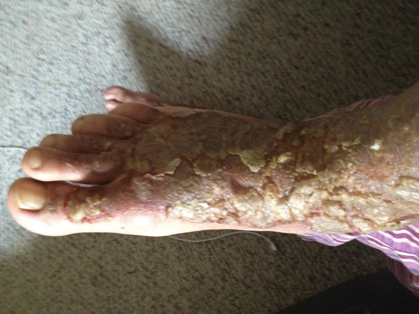 Eczema And Diet Learn About The Perfect Diet For Eczema